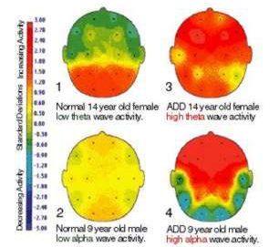 """Das """"normale"""" Gehirn vs. ADD und ADHD Gehirn"""