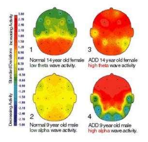 """Het """"normale"""" brein vs het ADD en ADHD brein"""