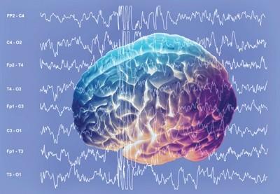 hersengolven van het brein Alpha, Beta, Theta, Delta en Gamma